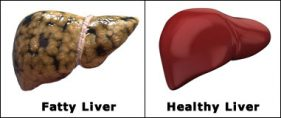 fatty and healthy liver